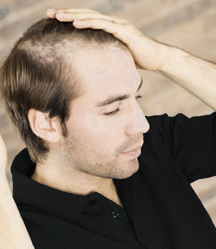 Thinning Hair On Sides Of Head Male